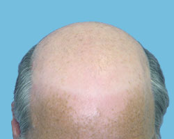 Before Hair Growth Treatment