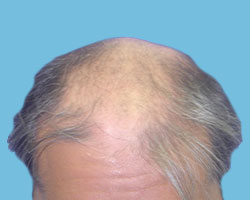 Hair Restoration Services by NM Hair Replacement Studio