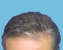 Hair Loss Restoration Treatment in Queens, NY