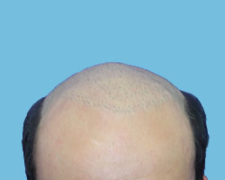 Mens Hair Regrowth Solutions NM Hair Replacement Studio