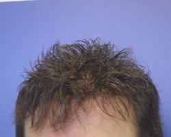 Before Hair Loss Treatment