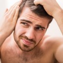 Why Is Hair Loss More Common in Men Than Women?