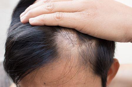 Hair Loss Stats