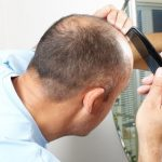 National Hair Loss Awareness Month