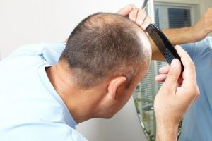 National Hair Loss Awareness Month