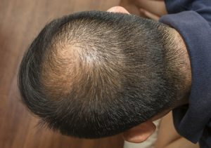 Hair Loss Worries