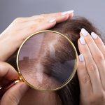 Hair Loss Specialist
